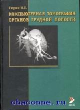 Компьютерная томография органов грудной полости