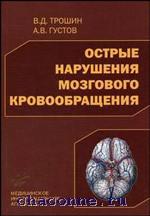 Острые нарушения мозгового кровообращения