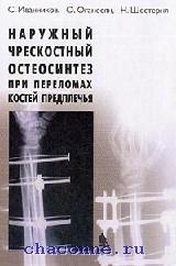 Наружный чрескостный остеосинтез при переломах