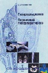 Гиперкальциемия. Первичный гиперпаратиреоз